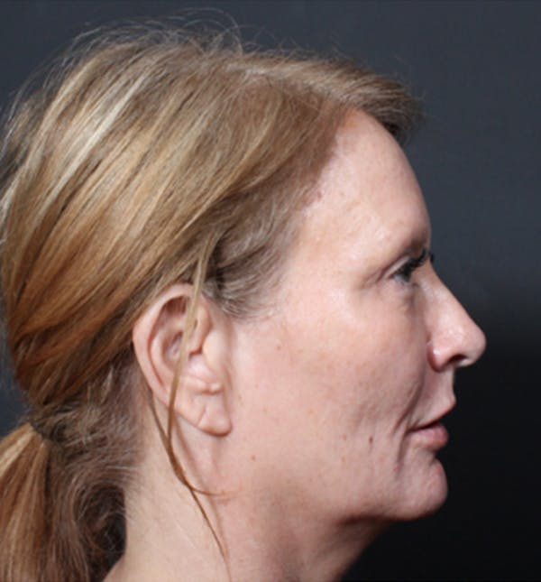Injectables Gallery - Patient 14089671 - Image 8