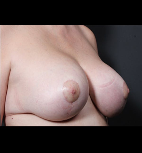 Breast Implant Revision Gallery - Patient 14089668 - Image 10