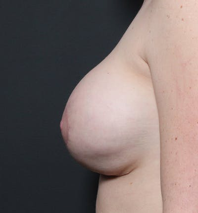 Breast Augmentation Gallery - Patient 14089670 - Image 6