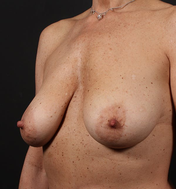 Breast Lift Mastopexy Gallery - Patient 14089679 - Image 1