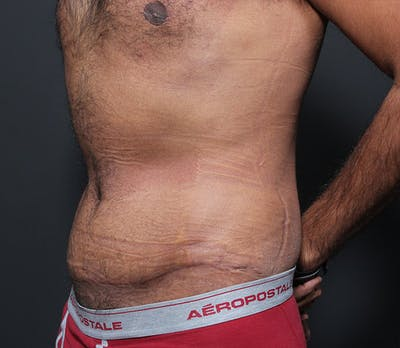 Male Tummy Tuck Gallery - Patient 14089675 - Image 2