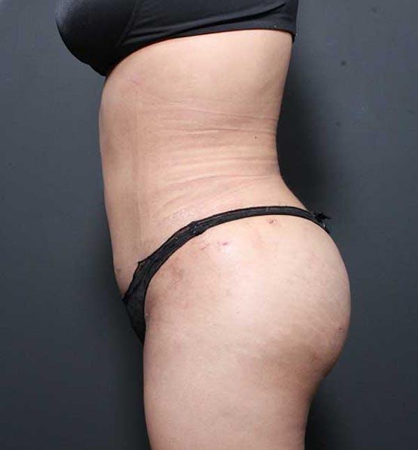 Brazilian Butt Lift Gallery - Patient 14089674 - Image 12