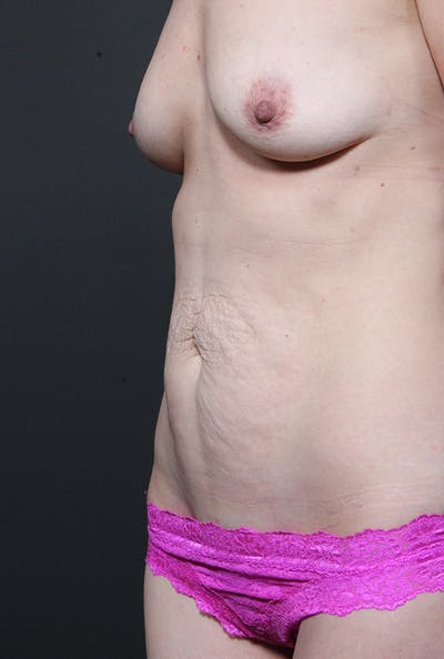 Mommy Makeover Gallery - Patient 14089678 - Image 1