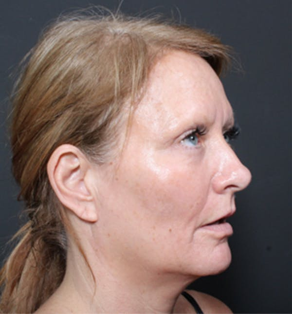 Injectables Gallery - Patient 14089671 - Image 9
