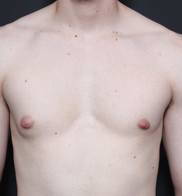 Male Chest Reduction Gallery - Patient 14089676 - Image 3