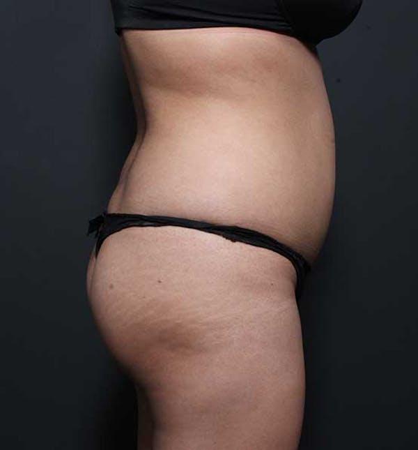 Brazilian Butt Lift Gallery - Patient 14089674 - Image 13