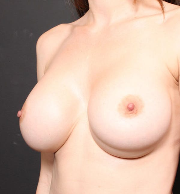 Breast Implant Revision Gallery - Patient 14089677 - Image 1
