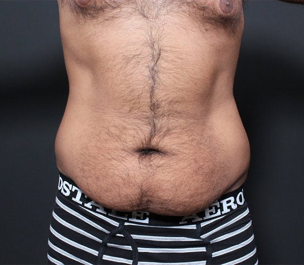 Male Tummy Tuck Gallery - Patient 14089675 - Image 3
