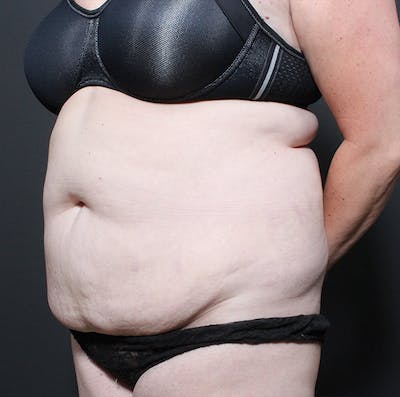 Tummy Tuck Gallery - Patient 14089683 - Image 1