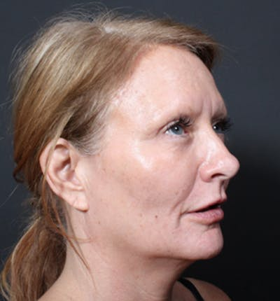 Injectables Gallery - Patient 14089671 - Image 10