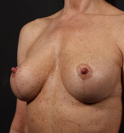 Breast Lift Mastopexy Gallery - Patient 14089679 - Image 2