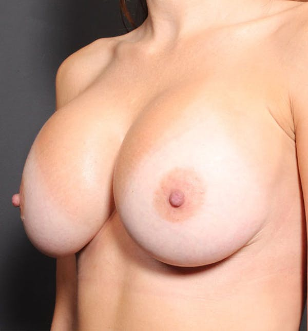 Breast Implant Revision Gallery - Patient 14089677 - Image 2