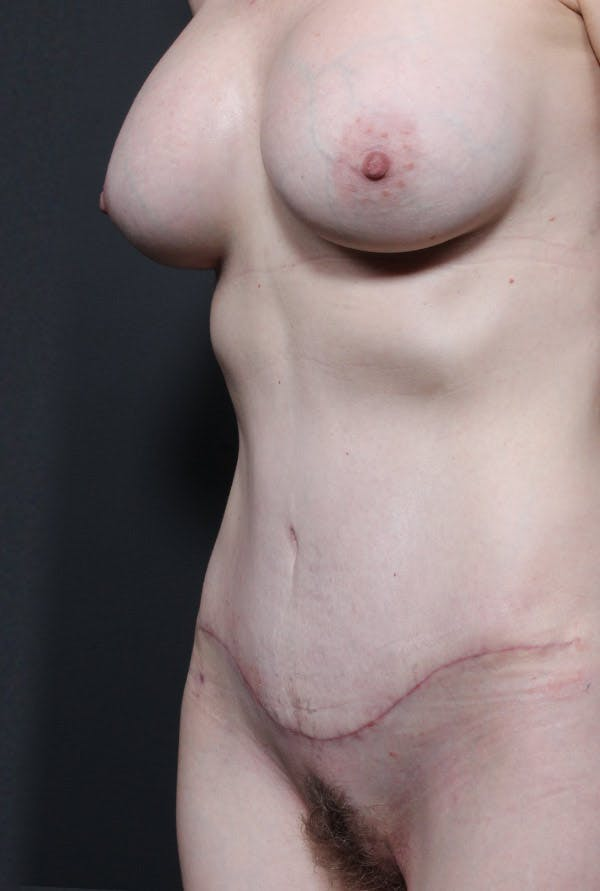 Mommy Makeover Gallery - Patient 14089678 - Image 2