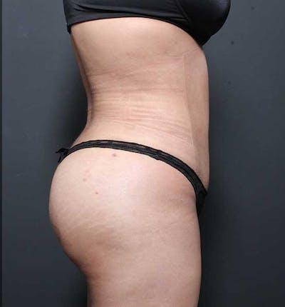 Brazilian Butt Lift Gallery - Patient 14089674 - Image 14