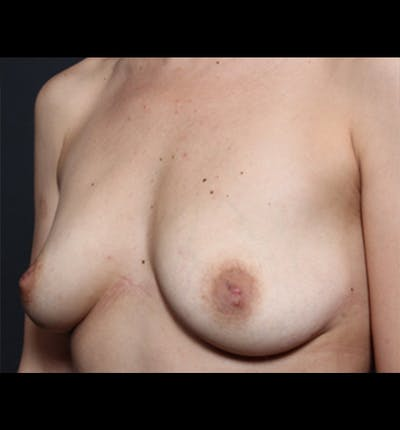 Breast Augmentation Gallery - Patient 14089681 - Image 1