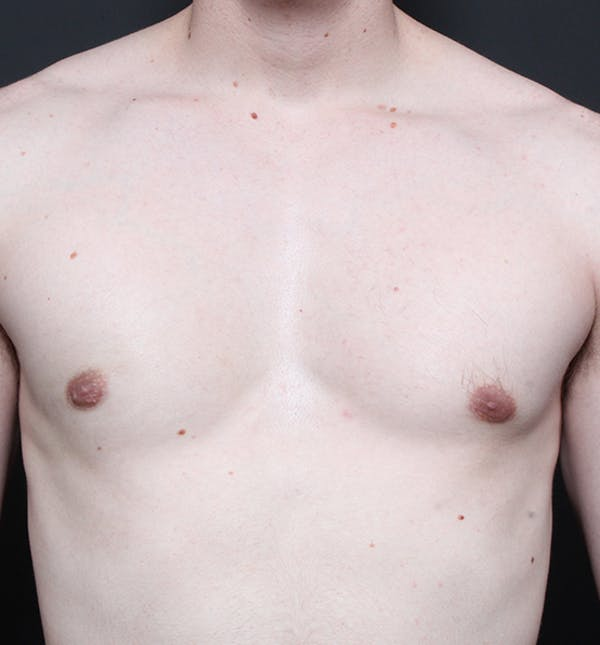 Male Chest Reduction Gallery - Patient 14089676 - Image 4