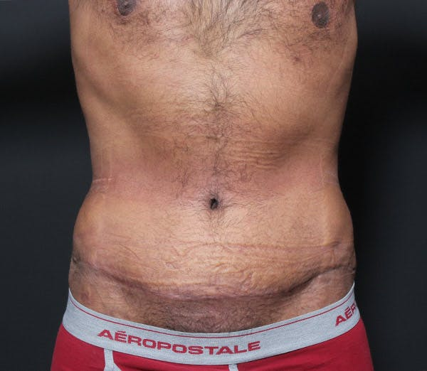 Male Tummy Tuck Gallery - Patient 14089675 - Image 4