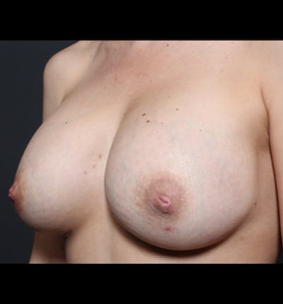 Breast Augmentation Gallery - Patient 14089681 - Image 2