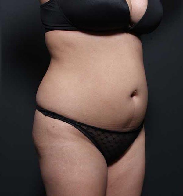 Brazilian Butt Lift Gallery - Patient 14089674 - Image 15