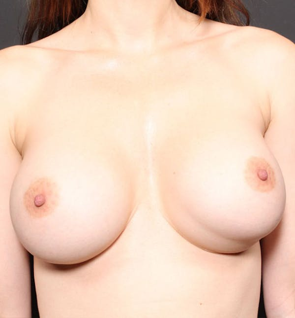 Breast Implant Revision Gallery - Patient 14089677 - Image 3