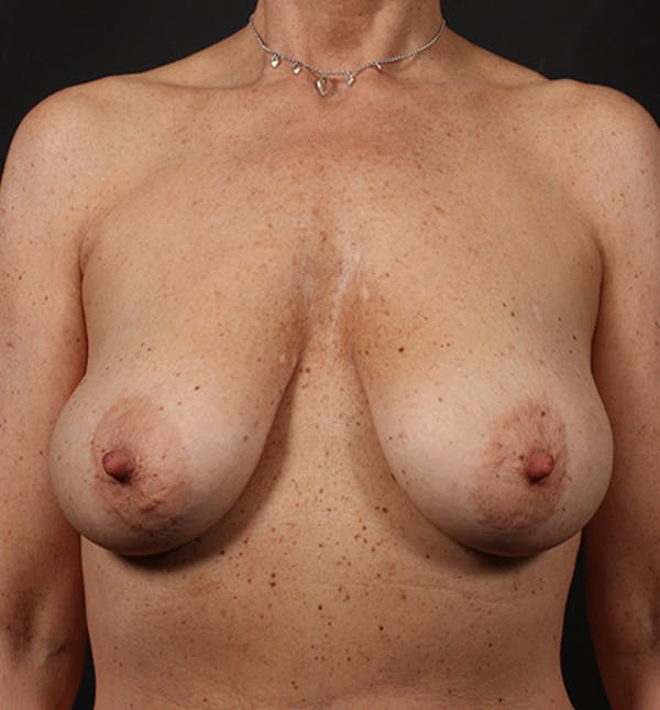 Breast Lift Mastopexy Gallery - Patient 14089679 - Image 3