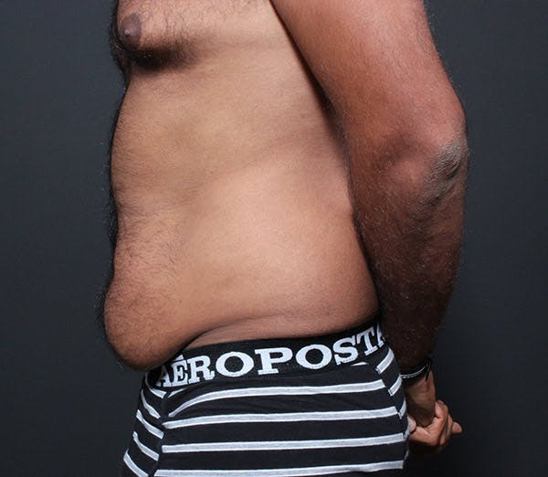 Male Tummy Tuck Gallery - Patient 14089675 - Image 5
