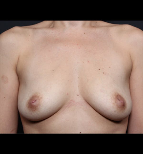 Breast Augmentation Gallery - Patient 14089681 - Image 3