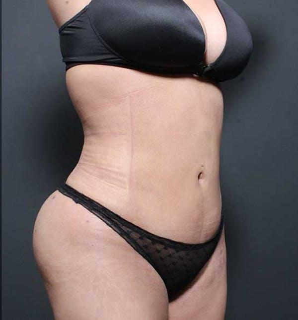 Brazilian Butt Lift Gallery - Patient 14089674 - Image 16