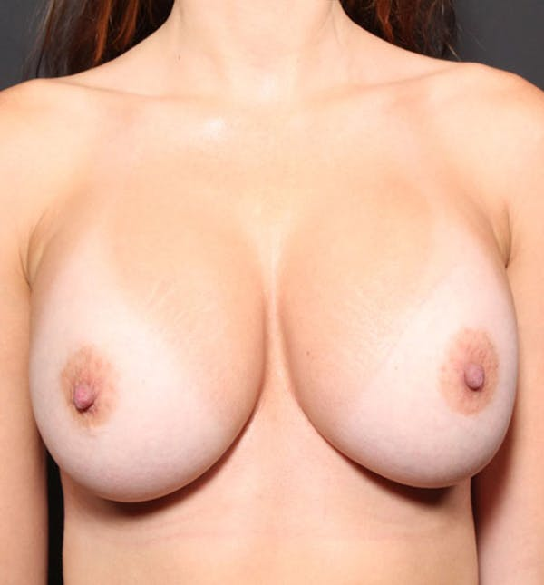 Breast Implant Revision Gallery - Patient 14089677 - Image 4