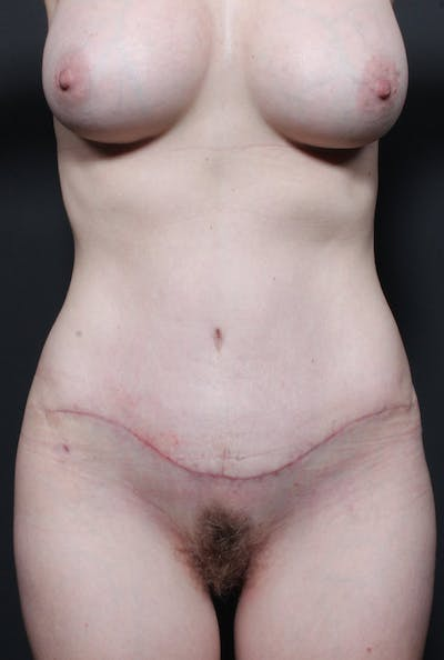 Mommy Makeover Gallery - Patient 14089678 - Image 4