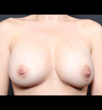 Breast Augmentation Gallery - Patient 14089681 - Image 4