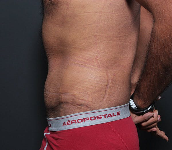 Male Tummy Tuck Gallery - Patient 14089675 - Image 6