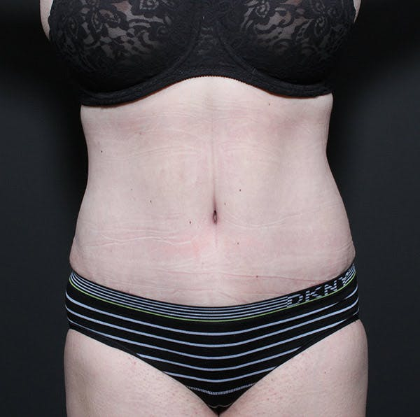 Tummy Tuck Gallery - Patient 14089683 - Image 4