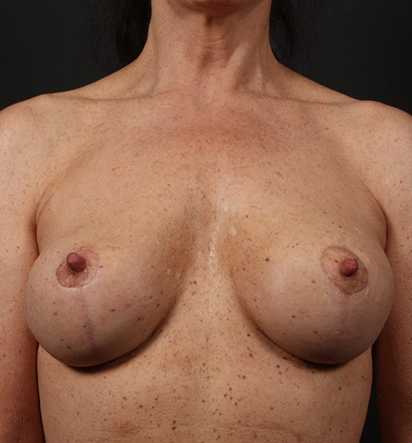 Breast Lift Mastopexy Gallery - Patient 14089679 - Image 4