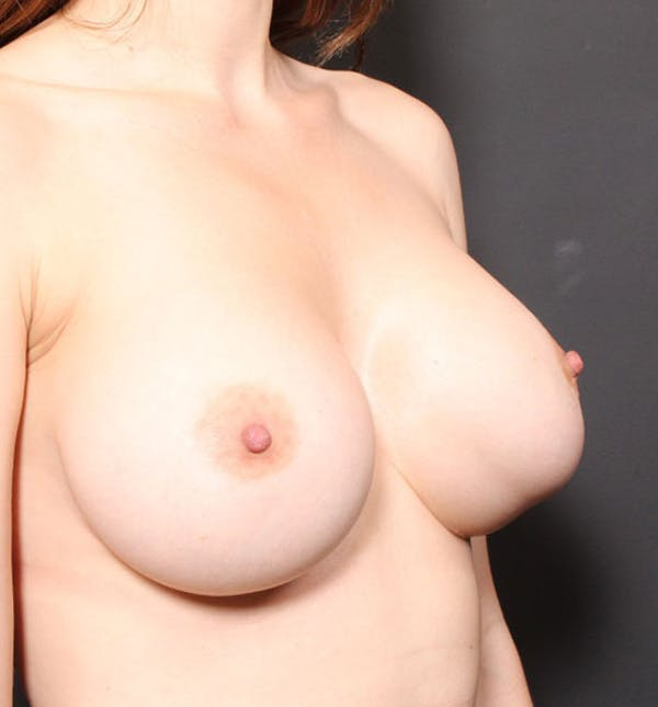 Breast Implant Revision Gallery - Patient 14089677 - Image 5