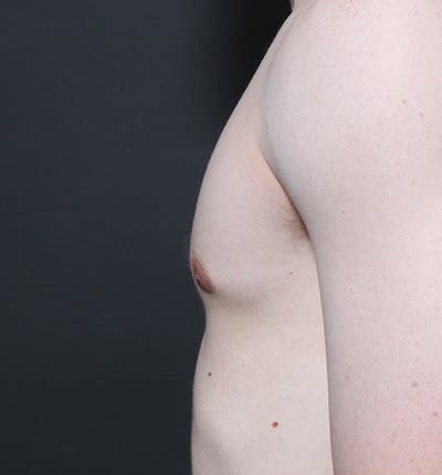 Male Chest Reduction Gallery - Patient 14089676 - Image 6