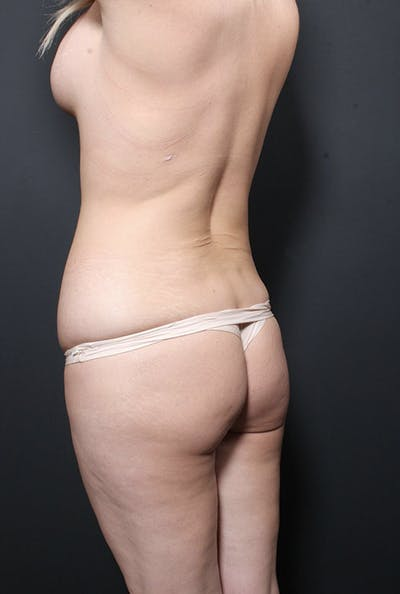 Brazilian Butt Lift Gallery - Patient 14089680 - Image 1