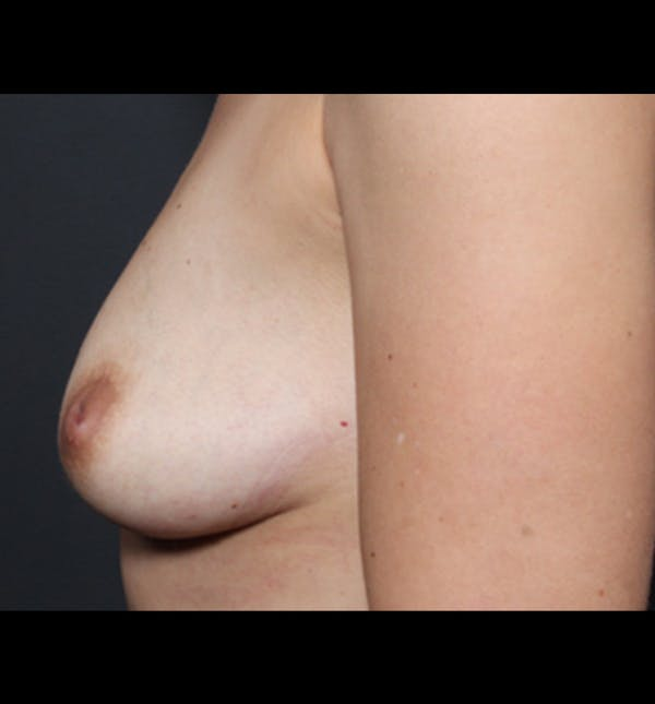 Breast Augmentation Gallery - Patient 14089681 - Image 5