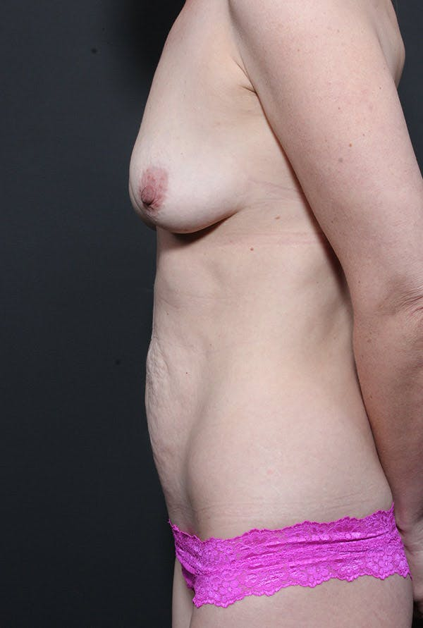 Mommy Makeover Gallery - Patient 14089678 - Image 5