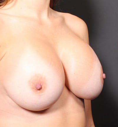 Breast Implant Revision Gallery - Patient 14089677 - Image 6