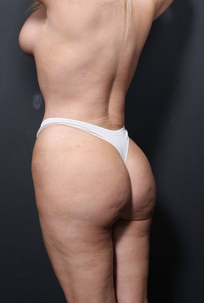 Brazilian Butt Lift Gallery - Patient 14089680 - Image 2