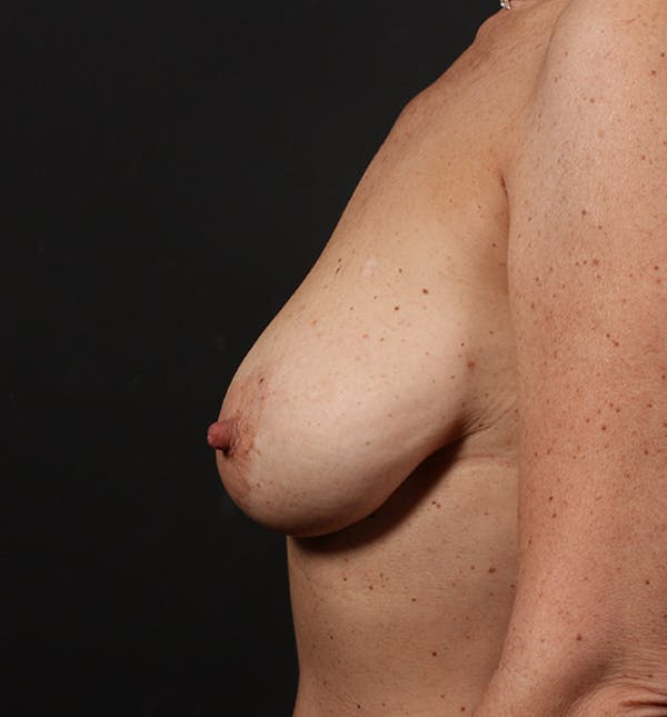 Breast Lift Mastopexy Gallery - Patient 14089679 - Image 5