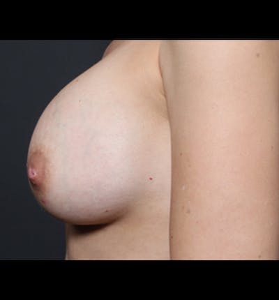 Breast Augmentation Gallery - Patient 14089681 - Image 6