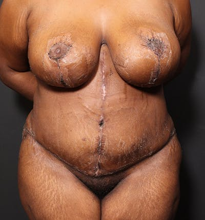 Plus Size Tummy Tuck® Gallery - Patient 14089688 - Image 2