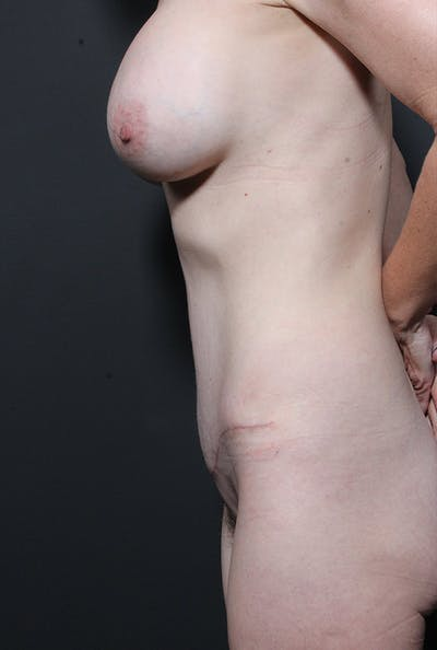 Mommy Makeover Gallery - Patient 14089678 - Image 6