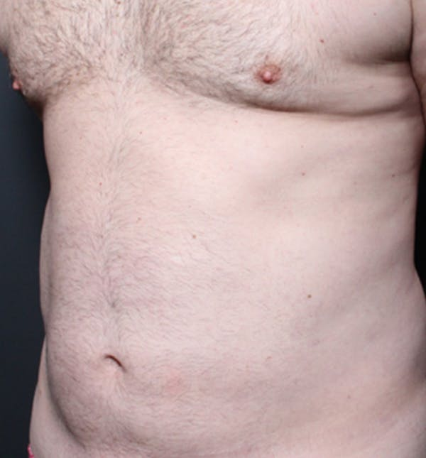 Male Chest Reduction Gallery - Patient 14089699 - Image 1