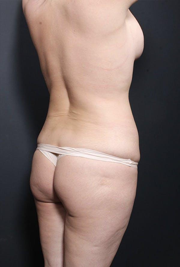 Brazilian Butt Lift Gallery - Patient 14089680 - Image 3