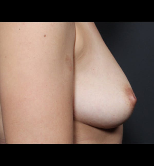 Breast Augmentation Gallery - Patient 14089681 - Image 7