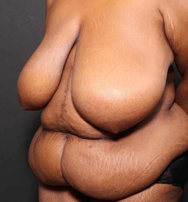 Plus Size Tummy Tuck® Gallery - Patient 14089688 - Image 3