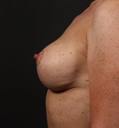 Breast Lift Mastopexy Gallery - Patient 14089679 - Image 6